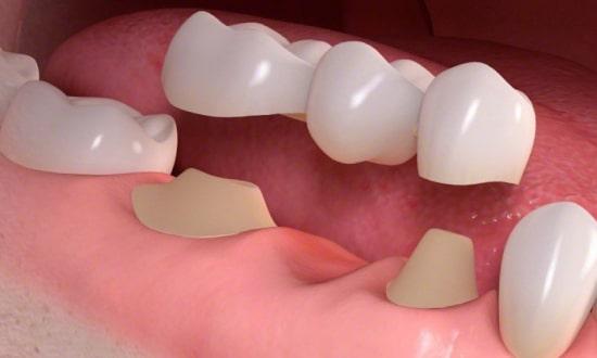 کاشت دندان به روش بریج