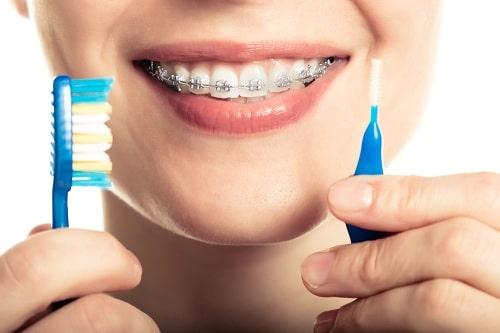 بهداشت در ارتودنسی-مسواک زدن
